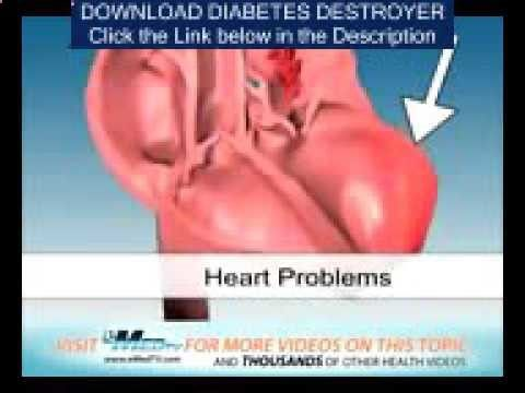 How To Treat Diabetes With Moringa - Diabetes How To Lower - WATCH VIDEO HERE -> bestdiabetes.solu... Why diabetes has NOTHING to do with blood sugar How To Treat Diabetes Mellitus Type 2 – Diabetes How Often Do You Urinate If you're planning to go a no-standard course for the diabetes treatment method, continue to be under the supervision of the medical professional. Make sure... Why di