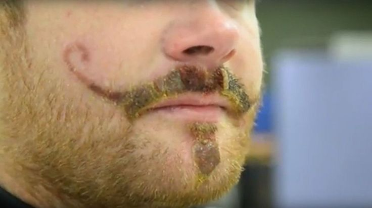 Henna Tattoo Allergy Leaves Man with Permanent Handlebar Mustache Scar What was supposed to be a bit of fun turned into a crying game for Arran Maye, a 28-year-old plumber from Leicester. While vacationing with 20 friends... http://drwong.live/weird/henna-tattoo-allergy-leaves-man-with-permanent-handlebar-mustache-scar-html/