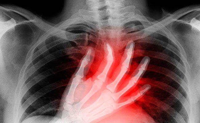 Una condición llamada costocondritis, que causa dolor alrededor del hueso de lapoitrine y la caja torácica, es común en personas con defibromyalgie (FMS). Sin embargo, muchas personas no se …