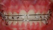 British Orthodontic Society > Public & Patients > Orthodontics for Children & Teens > Treatment & brace types > Retainers