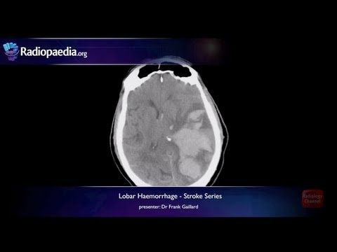 28 best radiology channel images on pinterest channel radiology stroke series video 2 of lobar haemorrhage and hypertensive haemorrhage are two distinct forms of haemorrhagic stroke this video discusses the imaging fandeluxe Choice Image