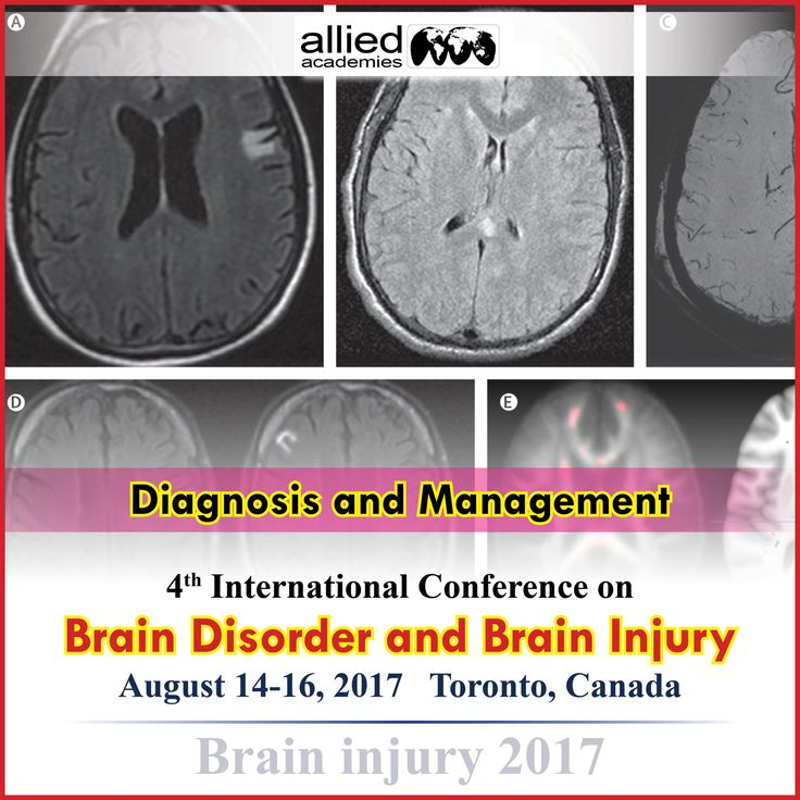TBI Diagnosis and Management                 # a traumatic brain injury (TBI) is responsible for thousands of deaths each in a year in the UK. As well as significant numbers of people suffer from temporary and permanent disability due to the brain injury.