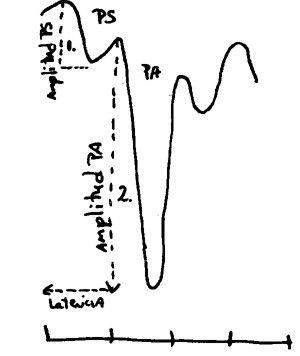 Electrococleograma de un normooyente en respuesta a un clic presentado a 95 dBnHL. Los parámetros que componen la respuesta: el potencial de sumación PS, y el potencial de acción del nervio auditivo PA