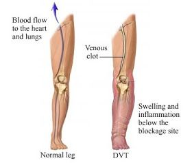 Natural Remedy For Blood Clots In Leg