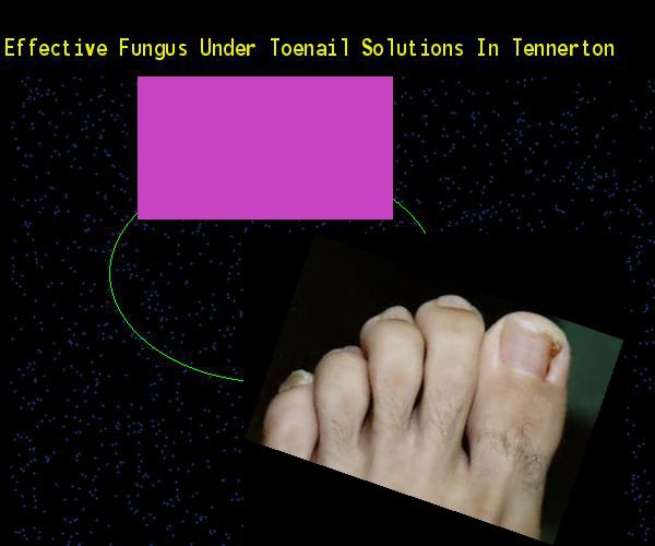 Effective fungus under toenail solutions in tennerton - Nail Fungus Remedy. You have nothing to lose! Visit Site Now
