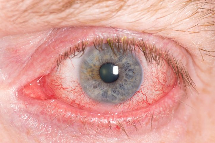scleritis inflammation of the white of the eye Patti Wiggs