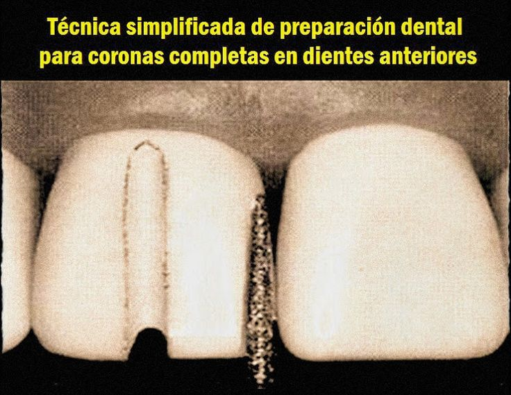 Técnica simplificada de preparación dental para coronas completas en dientes anteriores | OVI Dental