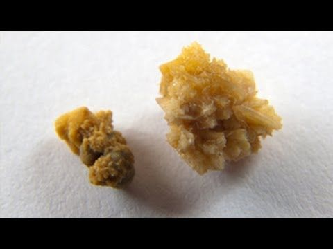 10 Natural Remedies for Kidney Stones - Global Healing Center
