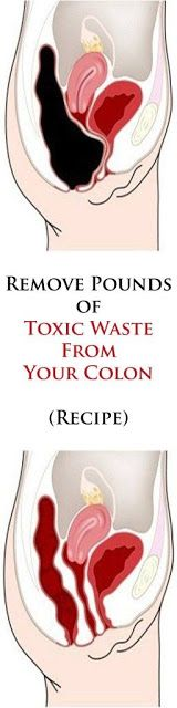 Remove Pounds of Toxic Waste From Your Colon – Recipe