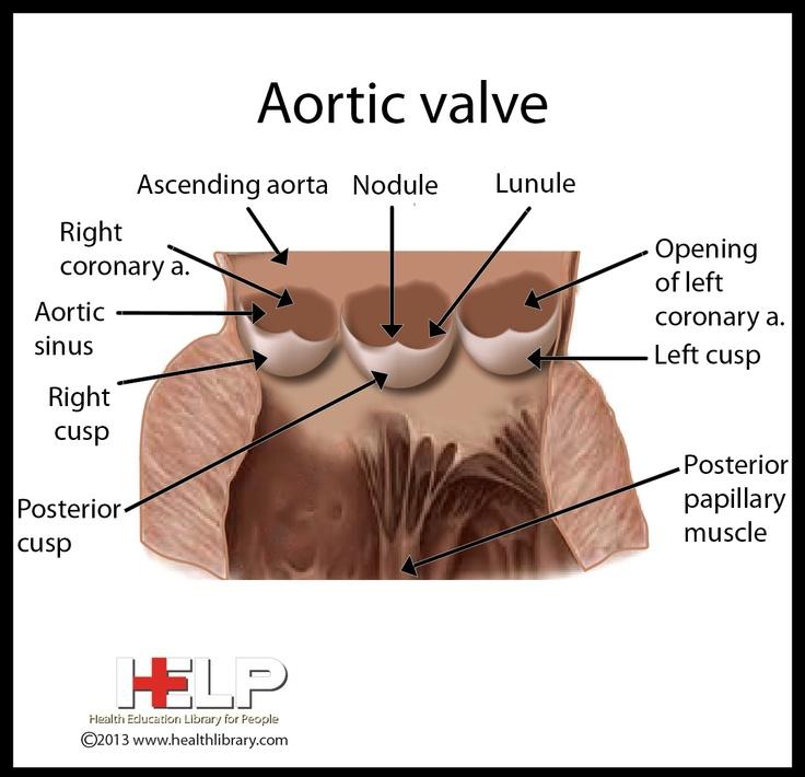 Best 32 Bicuspid Aortic Valve images on Pinterest ...