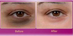 Knowing that you can get rid of your dark circles within two days isn't something miraculous! These under eye circles which make you look dull, aged and tired, all the time. You can easily get rid of unsightly shadows under your eyes using this easy home remedy: Ingredients: 1 tablespoon baking soda 1 pinch of …