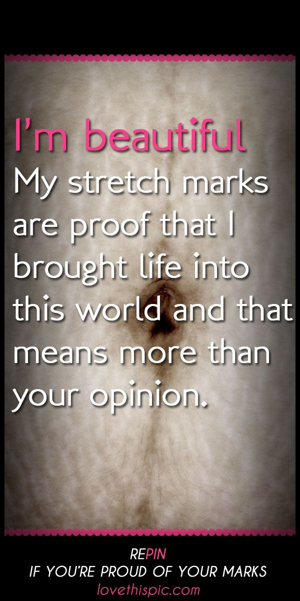 best 25 stretch marks quotes ideas on pinterest