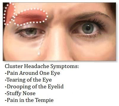 Cluster Headache sysmptoms Cluster Headache 101: Things You Need to Know About Cluster Headache. www.kyoung.expresscosmetics.com