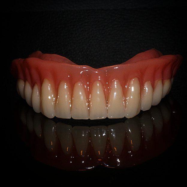 #dental #dentist #dentaltech #dentaltechnician #zahntechnik #zahntechniker #zahnarzt #dentalassistant #dentallab #dentallabor #dentalcare #inlay #onlay #circones #circon #zirkon #emax #cadcam #cerec #exocad #0711 #stuttgart #backnang #dentalphoto #köln #hamburg #berlin #followme #work #job
