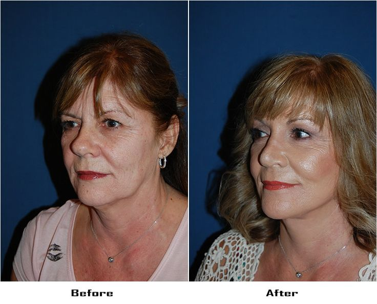 Procedures Performed:      Endoscopic Brow Lift: Asymmetric- Full Brow Lift- Right, 3/4 Brow Lift- Left     Eyelid: Lower Lid Blepharoplasty with SOOF     Deep Plane Facelift     Rhinoplasty     CO2 Laser Resurfacing: Full Face Resurfacing     Dr. Freeman's Makeovers