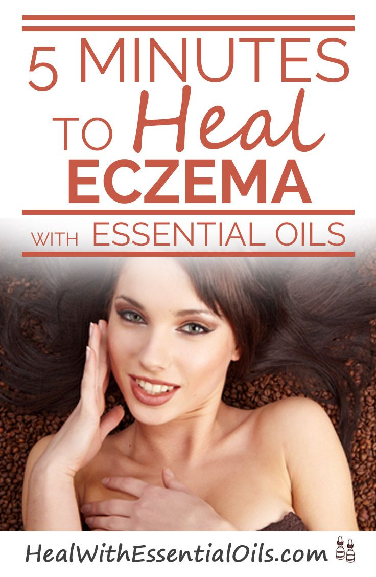 5 Minutes to Heal Eczema With Essential Oils