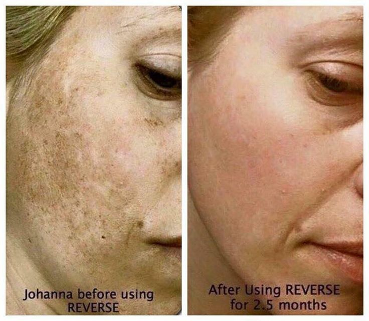 how to clear up eczema discoloration