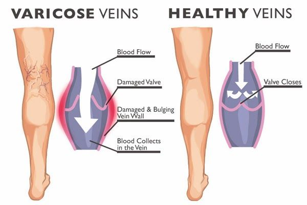 6-home-remedies-for-your-varicose-veins