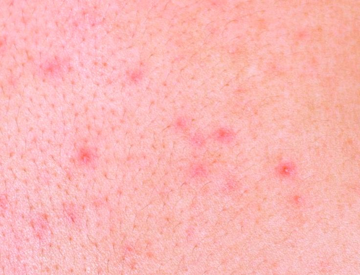 How To Naturally Treat Skin Allergies