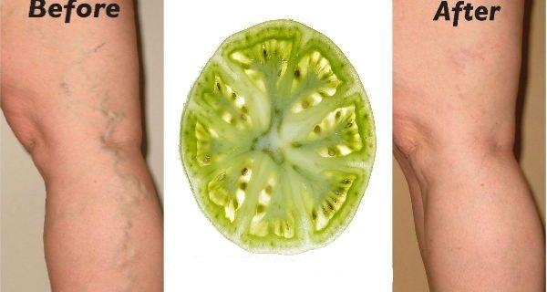 Le vene varicose sono un problema che affligge sia gli uomini che le donne.Ma molti non sanno che in casa hanno il rimedio per eccellenza:i pomodori verdi