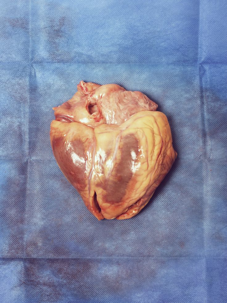 39 Best Circulatory System (Heart) Images On Pinterest