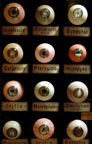 Antique Display of Common Eye Diseases