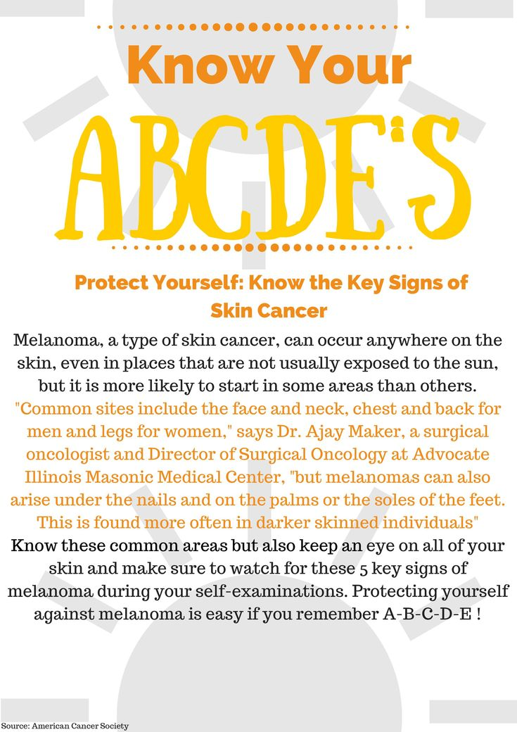 68 best skin cancer images on pinterest anatomy anatomy reference infographic the abcdes of skin cancer fandeluxe Image collections