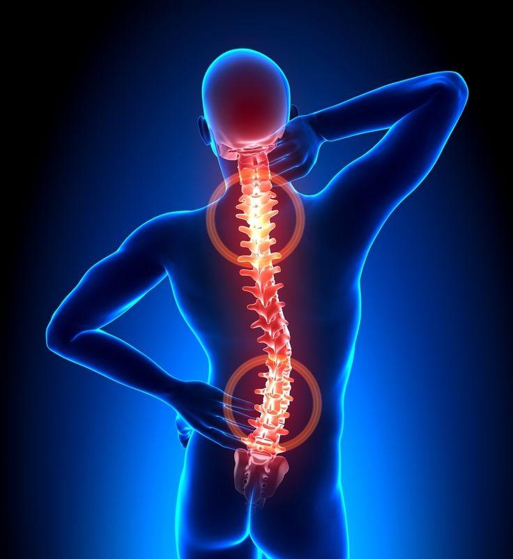 Saiba como tratar as principais doenças da coluna