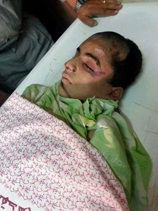 PHOTO: Mohammad Sunoqrot' 16 y/o, died Sept 7 wounded by #Israeli occupation in E. #Jerusalem. #News #WorldNews