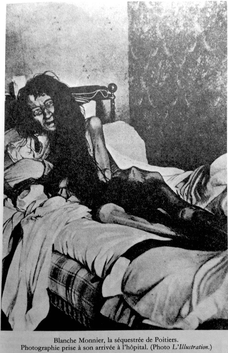In 1901 a woman in Poiters, France was found having been confined to her room for 24 years by her mother. How sad!
