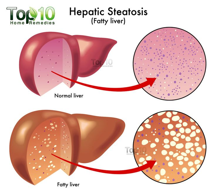 12 melhores imagens sobre liver health no pinterest fgado gordo home remedies for fatty liver disease fatty liver diagram ccuart Image collections