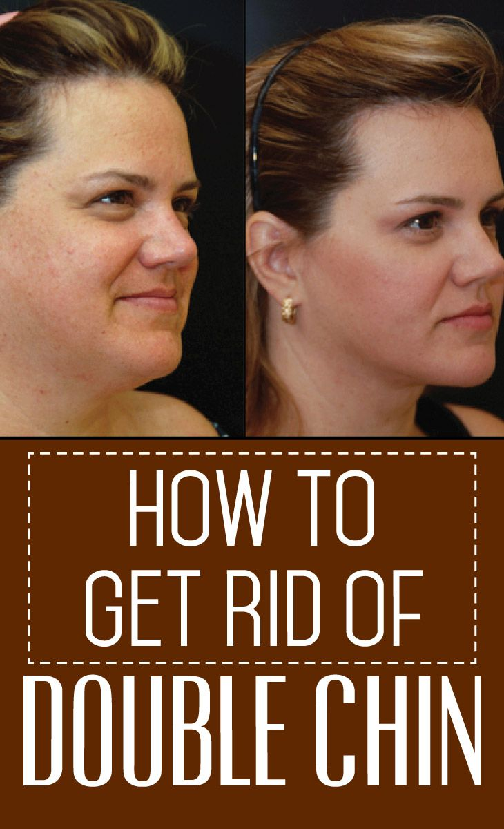 13 Tips on how to get rid of Double Chin fat