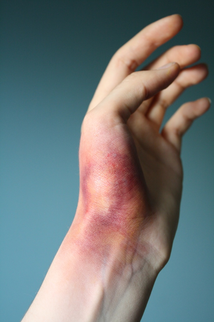 First stage of a bruise. Bruises occur when blood vessels break, due to some kind of force, and leak blood into areas under the skin. The main symptoms of a bruise are pain, swelling, and skin discoloration. A bruise begins as a pinkish, red color that can be very tender to touch.