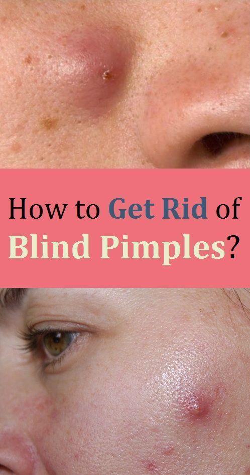 42a9a674f5d98512f33b298e7ffd35b3 - How To Get Rid Of Sore Spots Under The Skin