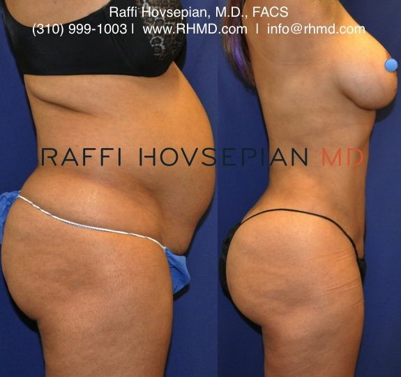 Amazing before and after body transformation of a 52 year old patient of Dr. Raffi Hovsepian who underwent Dr. Hovsepian's advanced liposculpture technique, Shrink Wrap Liposuction, and avoided a tummy tuck with conservative Brazilian Buttock Augmentation (Butt Lift). For more information visit www.RHMD.com | (310) 999-1003  #ShrinkWrapLiposuction #ShrinkWrapLipo #BrazilianButtLift #ButtockAugmentation #Liposuction #BBL #DrRaffiHovsepian #Lipo #Buttock #plasticsurgery #RaffiHovsepianMD…