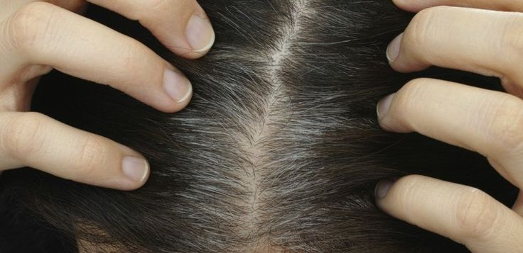 Find Out the Best Way to Deal with Gray Hair - also, interesting study about what causes hair to gray