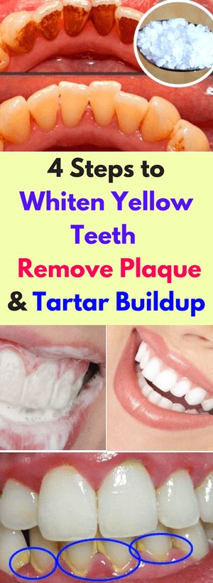 If you are into natural products and beauty treatments, this is the right recipe for you. Yellow teeth are the grosses thing when it comes to physical appearance, and some would try even the impossible to solve their aesthetic problem. Well, the first and best thing you should probably do is go visit your dentist. …