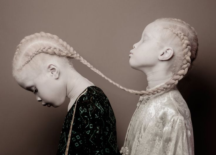 Twins with albinism become model