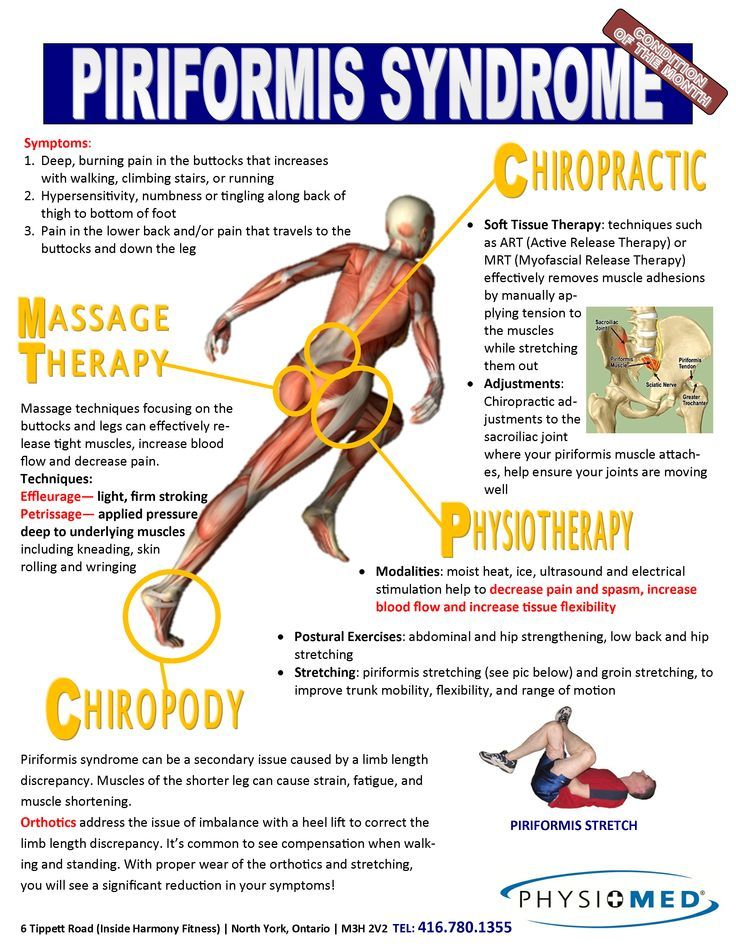 Piriformis Syndrome What Is It