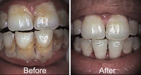 Gum Treatment Hospital in Ahmedabad, Gujarat, India for Gum Treatment, we have Top Gums Treatment Doctor for your Dental problem. Inquire Now.