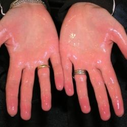 Natural Cure For Hyperhidrosis.........for someone who has wet hands and feet...youKNOW who you are:)