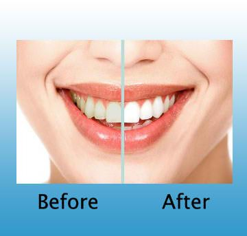 Let the cosmetic dentist restore your mouth back to health.