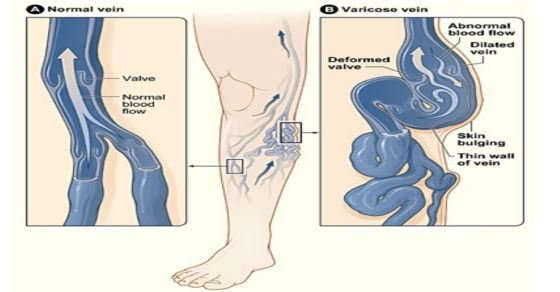 Varicose veins are disease of the superficial venous system. We present to you the three most effective methods of Russian folk medicine which are intended for the treatment of varicose veins. Garlic has known to be a helpful herb to reduce inflammation and other symptoms of varicose veins. It can also help improve circulation and […]