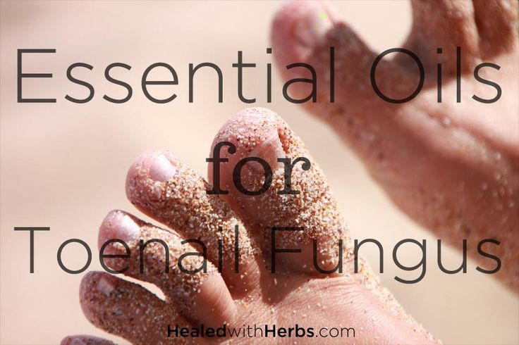 Cure yellow and brittle toenails easily and naturally with this list of essential oils for toenail fungus - plus blend recipes and application tips