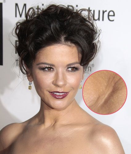 Actors Without Thyroid: Catherine Zeta Jones Has A Scar On Her Neck, The Result Of