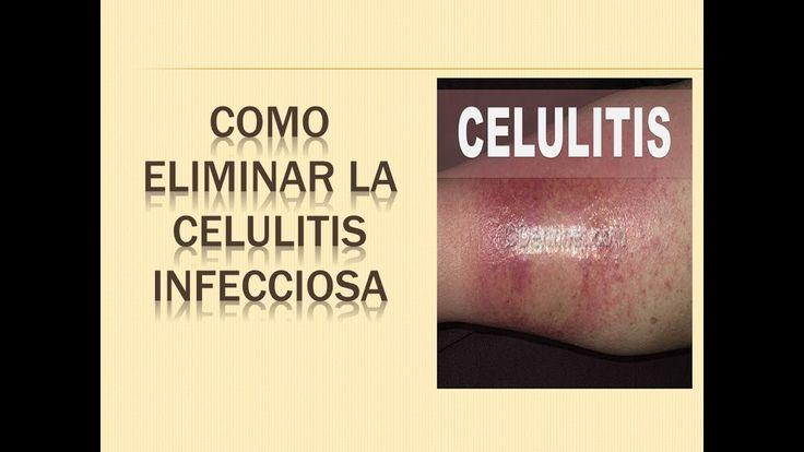 3 CONSEJOS DE COMO ELIMINAR LA CELULITIS INFECCIOSA