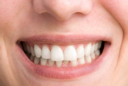 After applying the techniques I couldn't believe the results.  My teeth turned shiny white in no time at all and more importantly I did it naturally. My teeth feel great and now I can't keep a smile off my face and with the help of this amazing teeth whitening system I'm sure anyone can do the same.