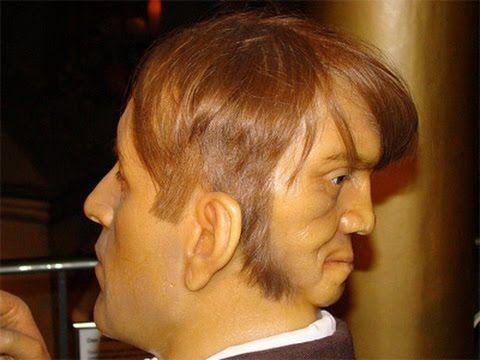 Edward Mordake: The Two Faced Man