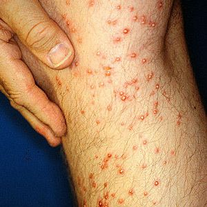 How to Identify and Treat Different Bug Bites - Grandparents.com