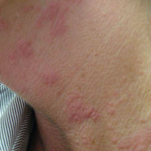 http://dermatology.about.com/od/hives/ig/Hives-Pictures/Hives-on-Neck.htm